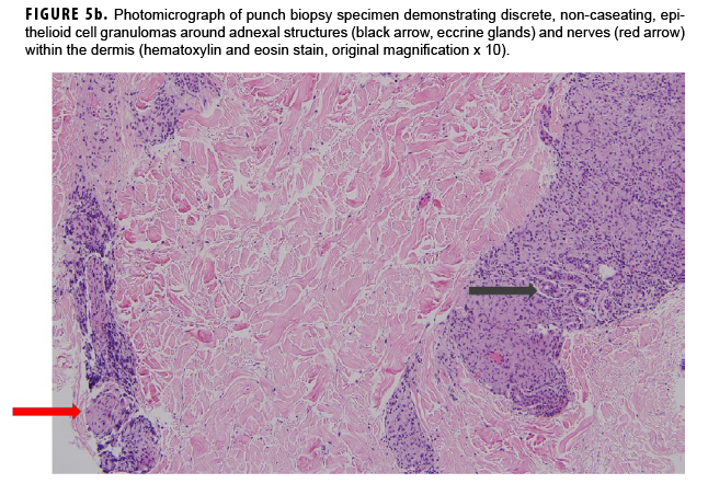 Photomicrograph of punch biopsy specimen demonstrating discrete, non-caseating, epithelioid cell granulomas around adnexal structures (black arrow, eccrine glands) and nerves (red arrow) within the dermis (hematoxylin and eosin stain, original magnification x 10).