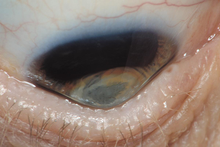 Keratoconus. Credit: © 2019 American Academy of Ophthalmology.