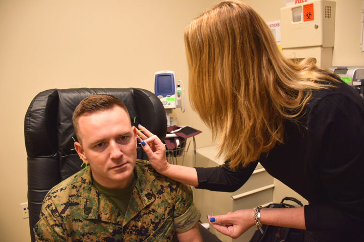 Marine Staff Sgt. Andrew Gales participates in 'battlefield' acupuncture, also known as 'ear acupuncture,' at Walter Reed National Military Medical Center, as a treatment for anxiety related to PTSD. (U.S. Navy photo courtesy Mass Communication Specialist 2nd Class Kevin Cunningham)