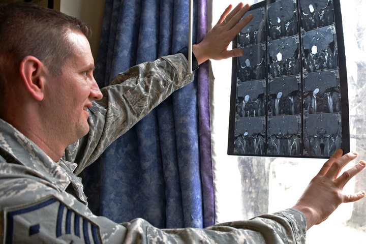 Air Force Master Sgt. Geoffrey VanDyck, the 707th Force Support Squadron's first sergeant, views an image of the tumor found on his auditory nerve, at Fort Meade, Maryland. In May 2005, VanDyck was diagnosed with acoustic neuroma, a noncancerous, normally slow growing tumor that develops on the main vestibular nerve that leads from the inner ear to the brain. (U.S. Air Force photo by Tech. Sgt. Veronica Pierce)