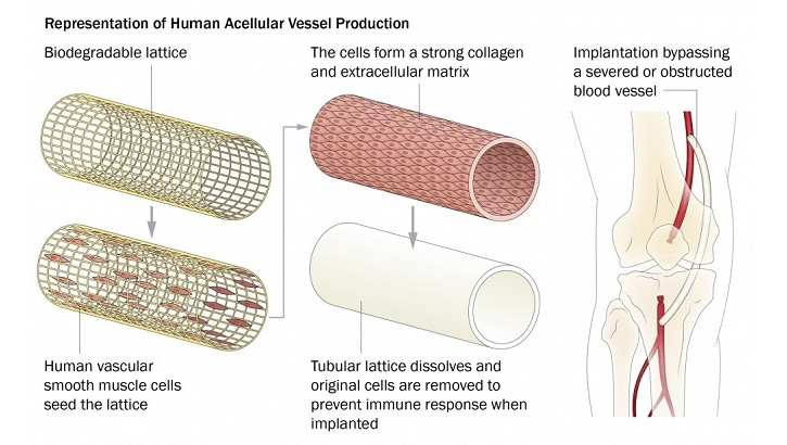 Development of the Human Acellular Vessel, or HAV, starts by taking living cells from a human blood vessel and placing them onto a tube-shaped frame. These vascular cells are kept alive in an organ chamber, growing around the tube-shaped lattice. Over time, the lattice that was used to seed the original vascular cells dissolves, and scientists remove the original cells so the new vessel doesn't cause an immune response when it's implanted. What is left is a solid, tubular structure made of human vascular material that looks and acts like a blood vessel -- thus, the bio-engineered and newly-grown blood vessel, or HAV. (USU medical illustration by Sofia Echelmeyer)