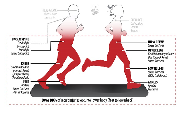 More than 80 percent of recruit injuries occur to lower body. (Image courtesy Army Public Health Center)