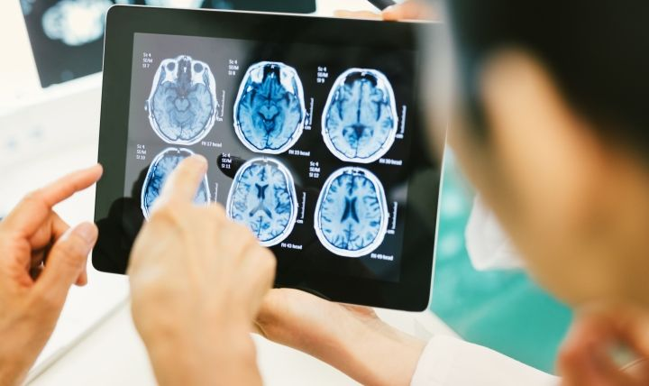 Traumatic brain injuries can happen anywhere. Regardless of how or when, all TBIs need medical attention, experts warn. (Photo courtesy of Walter Reed National Military Medical Center)
