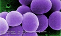 This strain of antibiotic-resistant Staphylococcus aureus bacteria is magnified 50,000 times.