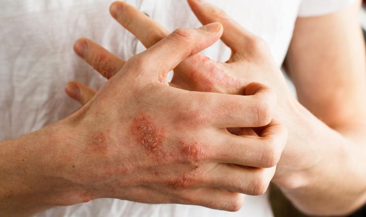 eczema and intimacy