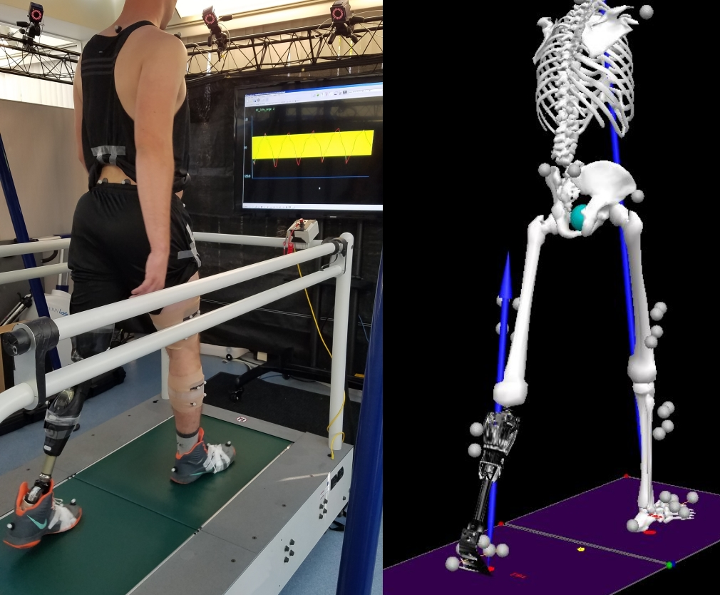 Gait Lab Research at Naval Medical Center San Diego