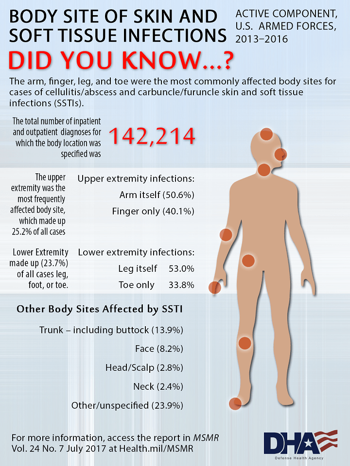 Did you know…? The arm, finger, leg, and toe were the most commonly affected body sites for cases of cellulitis/abscess and carbuncle/furuncle skin and soft tissue infections (SSTIs). The total number of inpatient and outpatient diagnoses for which the body location was specified was 142,214.