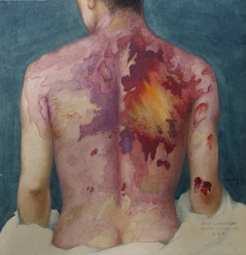 Watercolor paintings such as this one documented the traumatic effects of chemical exposure on soldiers during World War I. Color paintings were more illustrative of the nature of the injuries than black-and-white photos of that period. The Army Medical Museum dispatched illustrators to France to document injuries such as this one during and after war. This painting depicts Private Jacob Leifer of New York, New York, Company M, 16th Infantry, showing extensive first-degree mustard gas burns on Leifer's entire back. Leifer died of bronchopneumonia due to gas poisoning and was autopsied at Base Hospital No. 15, Chaumont, France, on October 10, 1918. The artist, Sgt. Elliott R. Brainard of New York (1894-1937) was assigned to Museum Unit 1, and after the war, he worked at Walter Reed General Hospital in Washington, D.C. (Artist: Sgt. E. Brainard, watercolor, gouache, 1918) (Brainard 00002/ OHA 229.39.05, Otis Historical Archives, National Museum of Health and Medicine)