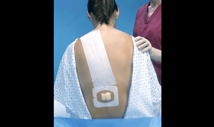 Pain medication is managed with the placement of an intrathecal catheter exactly like an epidural catheter used for laboring women, except that the catheter resides in the intrathecal space where the cerebrospinal fluid resides instead of the epidural space. (Courtesy photo)